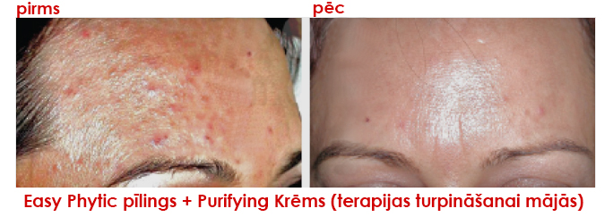 Easy Phytic pīlings + Purifying Krēms